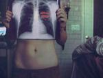 Сердце выделяется через Рентген